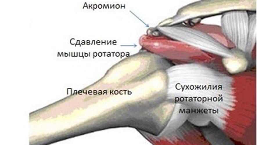 Сухожилие надостной мышцы плеча повреждение картинки